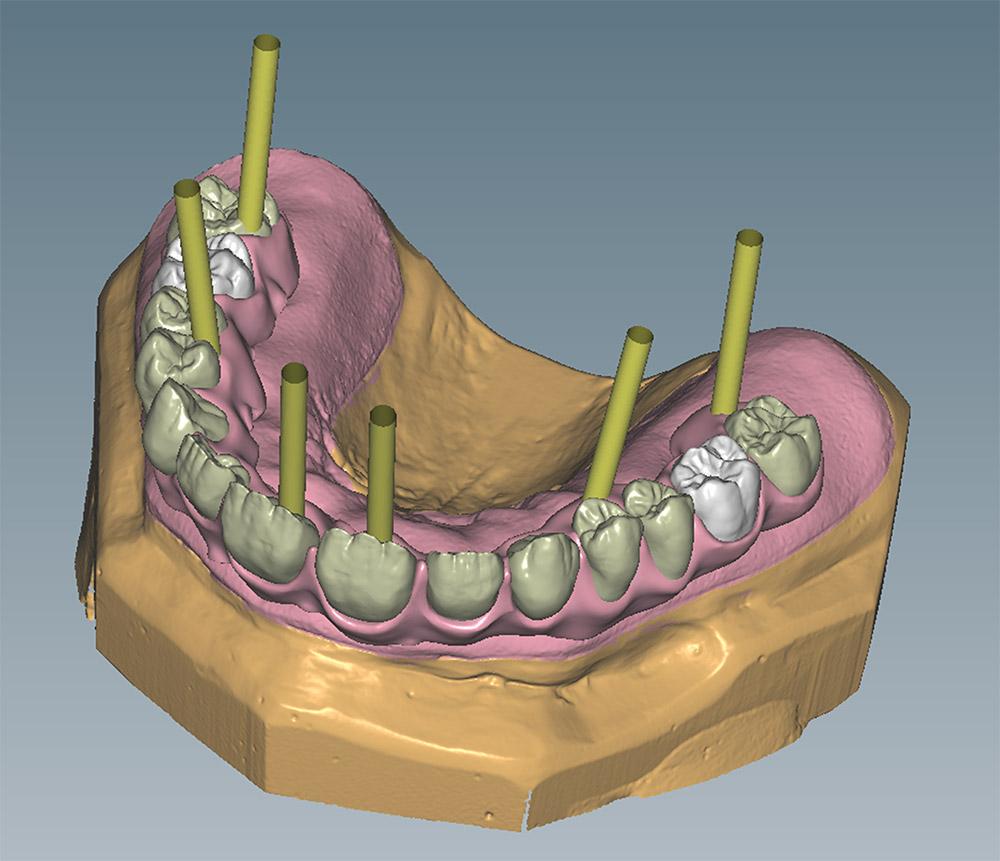 Computergrafik Implantatprothetik